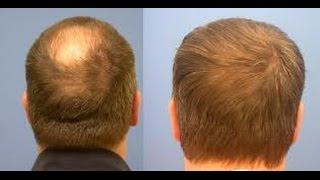 ARGAN Life - Natural Hair Loss Treatment and Cure Testimonials