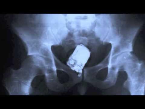25 cosas raras encontradas gracias a los rayos X