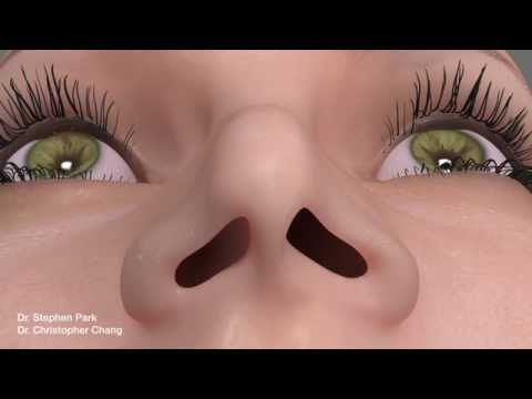 Pinched Narrow Nose Rhinoplasty to Address Nasal Obstruction video download