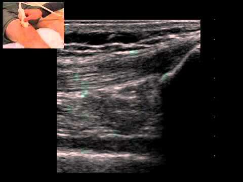Musculoskeletal Ultrasound: Knee 1: suprapatellar longitudinal scan
