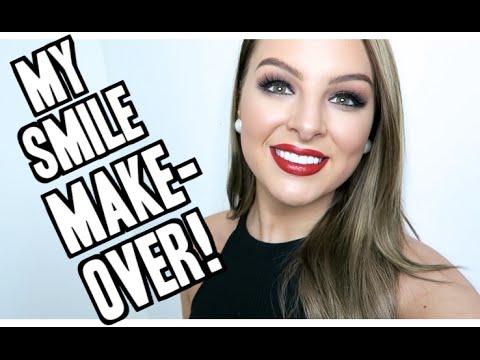 MY NEW SMILE! Vlog + Q&A! Porcelain Veneers + Invisalign