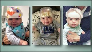 Diagnosis and Treatment of Craniosynostosis in Children.