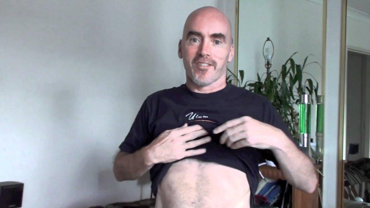 Gallbladder removal aftercare