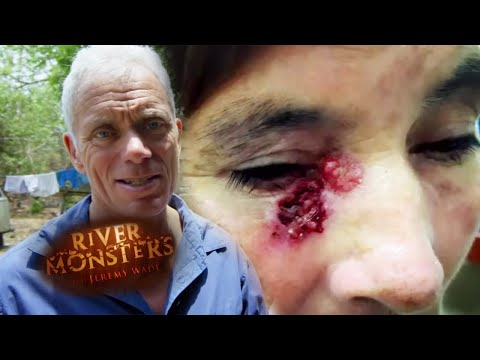 Amazonian Village Being Decimated By Parasitic Disease | River Monsters