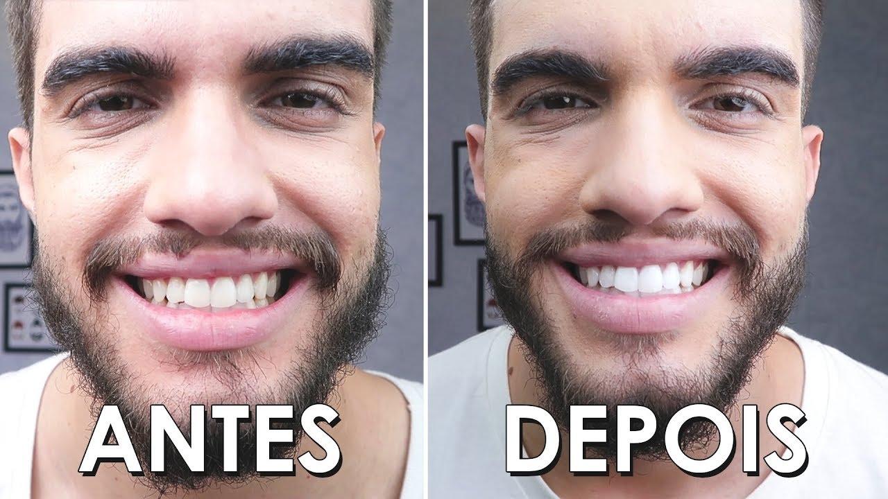 Clareei Os Dentes Em Casa Com Carvvo Antes E Depois 14 Dias Youtube
