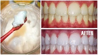 Add Just 2 ingredients in Toothpaste and See the Magic | Toothpaste Teeth Whitening Hacks