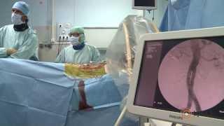 L'anévrisme de l'aorte abdominale en 10 points clés