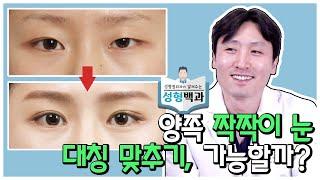 (절개눈매교정+앞트임+…