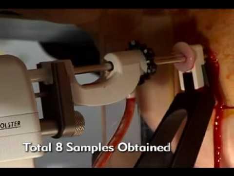 Procedimento de Estereotaxia de YouTube · Duração:  5 minutos 28 segundos