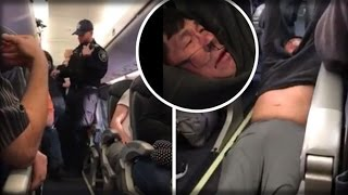 WOW!!! AFTER UNITED PASSENGER WAS RIPPED FROM HIS SEAT THE CEO STEPPED FORWARD AND MADE IT WORSE!!!