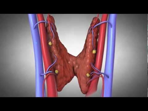 Parathyroid Glands And Hyperparathyroidism: Amazing Animation.