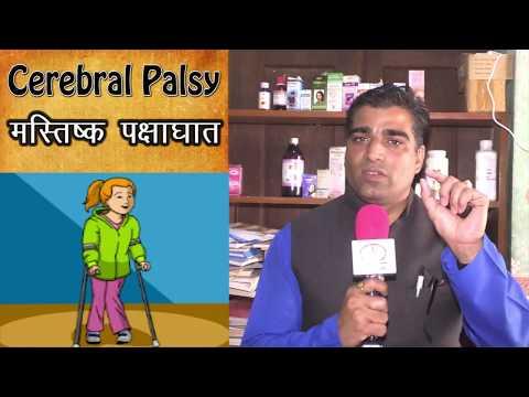 Cerebral Palsy(CP) Causes, Symptoms, Diagnosis#treatment in Jaipur#CPChild#cerebral palsy#CP#Jaipur