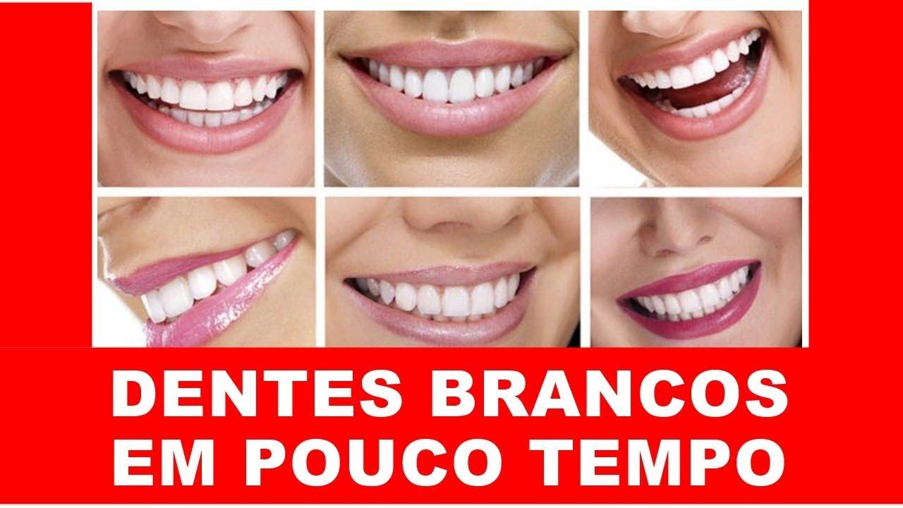 Produto Para Clarear Os Dentes Clareador De Dentes Como Clarear Os