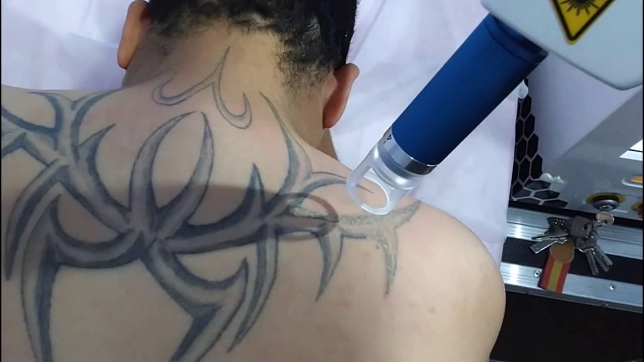 Eliminar Tatuajes Con Láser Antes Y Después