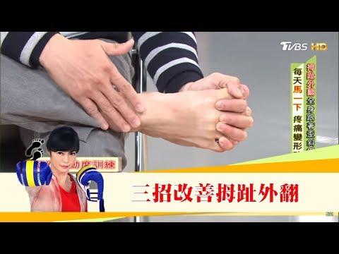 腰痛查不出原因,竟是「拇指外翻」造成的!三招改善讓腳不變形 健康2.0