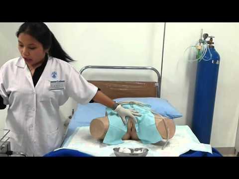 Prosedur Pemasangan Kateter Urin oleh Fanny Mustikaningtyas - Kelas B