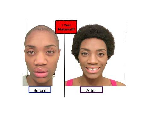 1 Year Natural Alopecia Hair Growth Success Alopecia