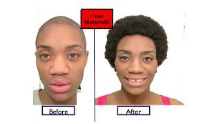 1 Year Natural | Alopecia Hair Growth Success (Alopecia Areata)