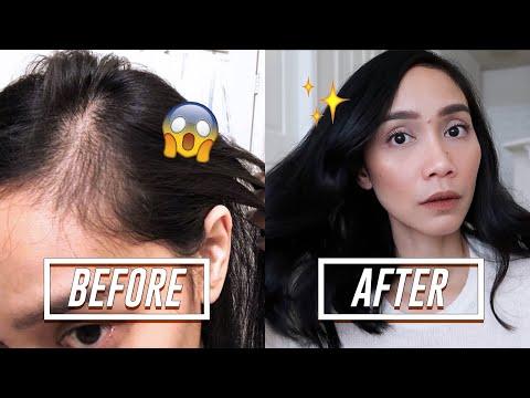 HAIR LOSS AT MANIPIS NA BUHOK?! | The Ultimate Hair Grower