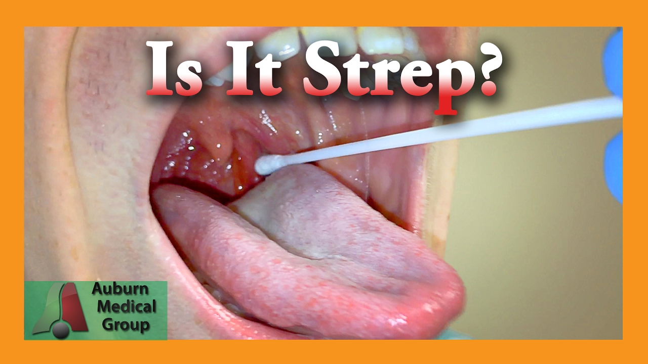 Is It Strep Throat Auburn Medical Group Youtube