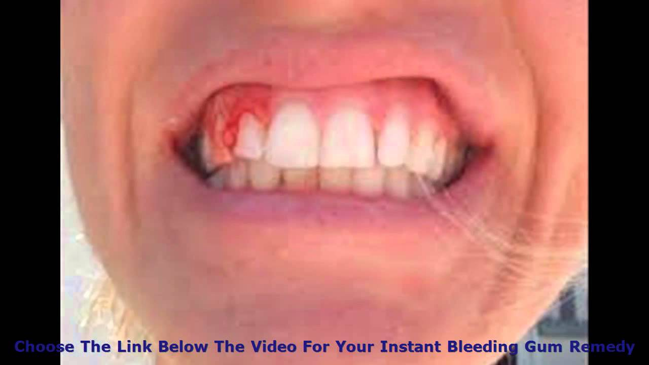 Get Rid Of Bleeding Gums in In One Week? Proven Bleeding Gums ...