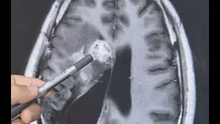 Science News - Man has 12 cm tapeworm in his brain for more than a decade