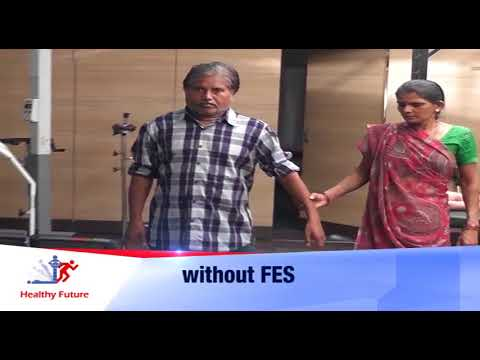 Case of Stroke : Walking with FES