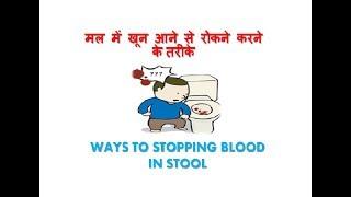 मल में खून आने से रोकने करने के तरीके - WAYS TO STOPPING BLOOD IN STOOL
