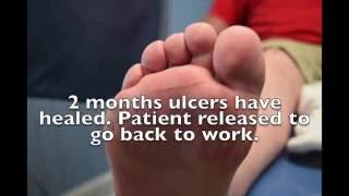 MIS Achilles Tendon Lengthening For Diabetic Ulcer
