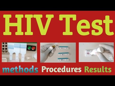 HIV Test Kit Procedure In Hindi 3 Methods And Results
