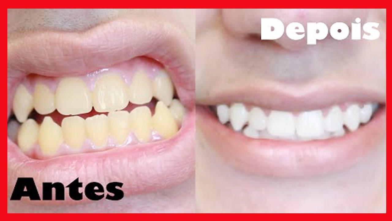 Como Clarear Os Dentes Veja Como Se Faz O Clareamento Dental