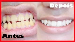 Como Clarear Os Dentes Viyoutube Com