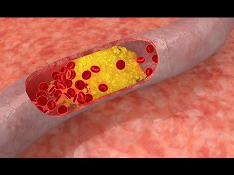 maladie cardio-vasculaire cardiomégalie hypertrophie du coeur