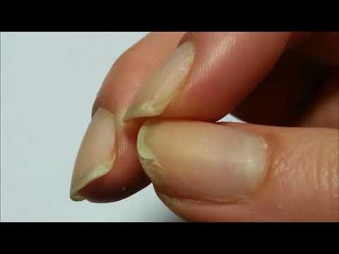 Почему слоятся ногти на руках и ногах?
