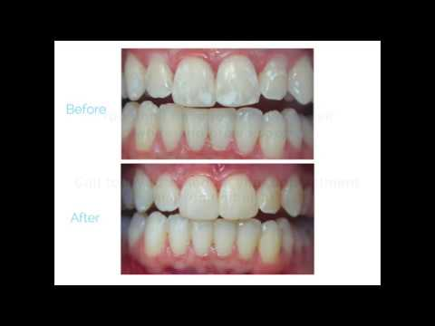 White Spots After Braces Youtube