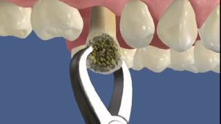 Имплантанты   21(Отличительная особенность - установка импланта сразу после удаления зуба. Пациент минует этап заживления..., 2014-04-25T05:20:26.000Z)