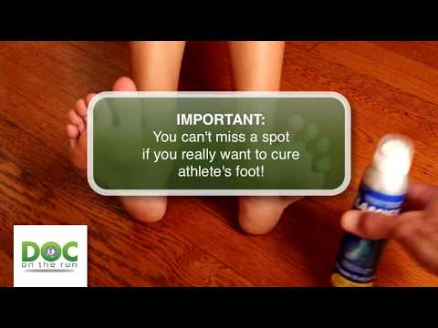 How to treat the foot fungus with topical antifungal