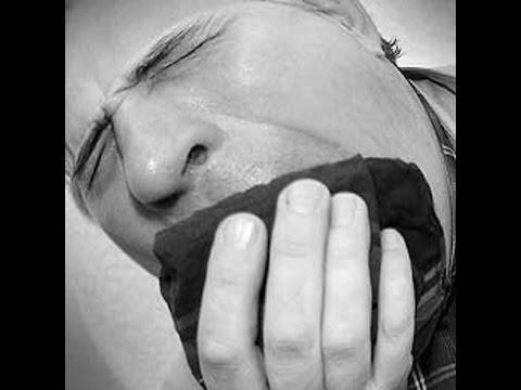 Туберкулез на флюорографии