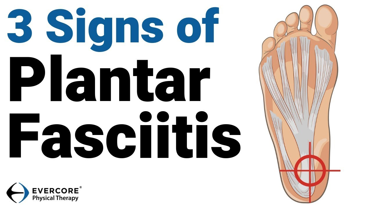 f22db06d7b 3 Signs of Plantar Fasciitis - (DO THESE 3 TESTS!) - YouTube