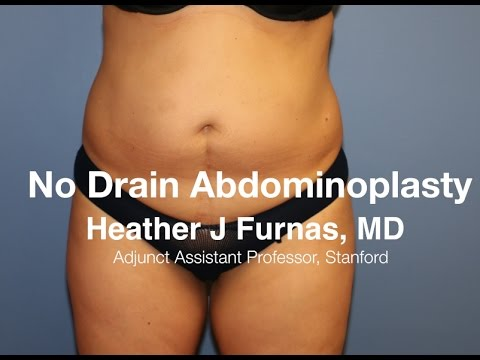 No Drain Tummy Tuck by Plastic Surgery Associates of Santa Rosa