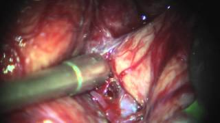 Cirurgia de Aneurisma Cerebral - Brain Aneurysm Surgery - Artéria cerebral media