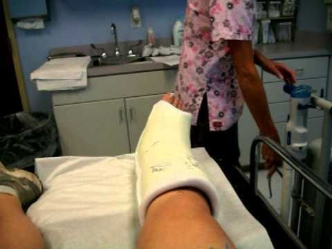 Sprained Ankle Cast