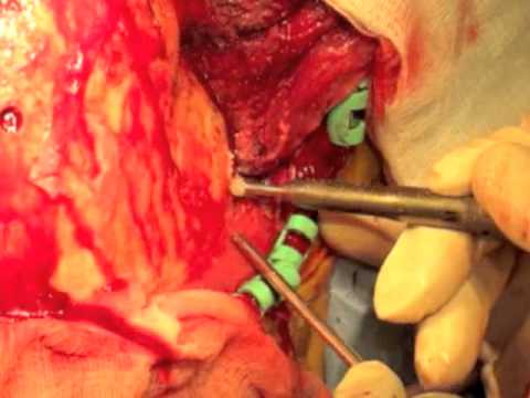 bilateral frontotemporal decompressive craniectomy kjellberg