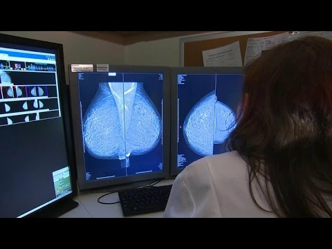 Research suggests chemotherapy alternative for early-stage breast cancer