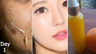 Apply Vitamin C toner/Serum to Remove Wrinkles|Skin Breakouts|Brightening Glowing glass skin|MA|