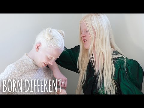 The Besties With Albinism | BORN DIFFERENT