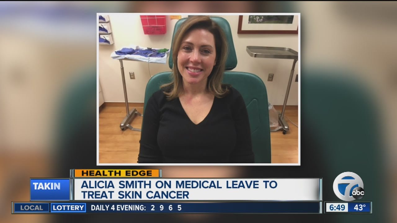 WXYZ anchor Alicia Smith gives update after surgery to remove skin cancer