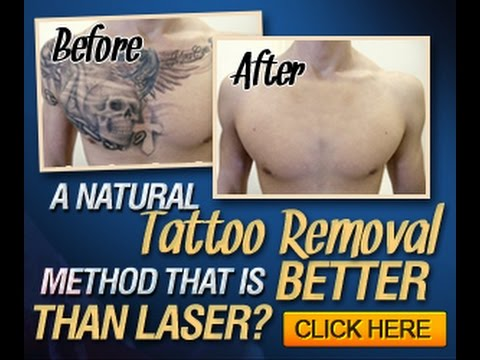 The Laserless Tattoo Removal Guide Review How Does It Work