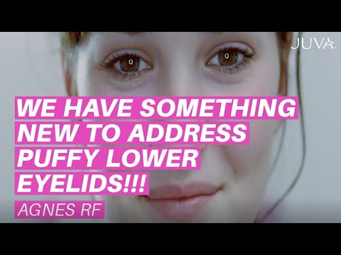 We Have Something New to Address Puffy Lower Eyelids!!!