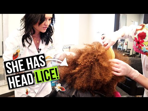 Lice And Nits In African American Hair! How To Remove Lice From A Big Beautiful Afro
